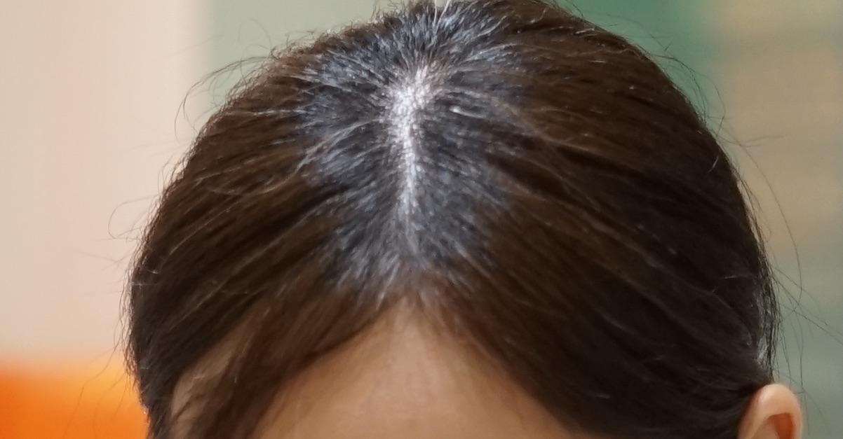 根元が伸びている髪の写真